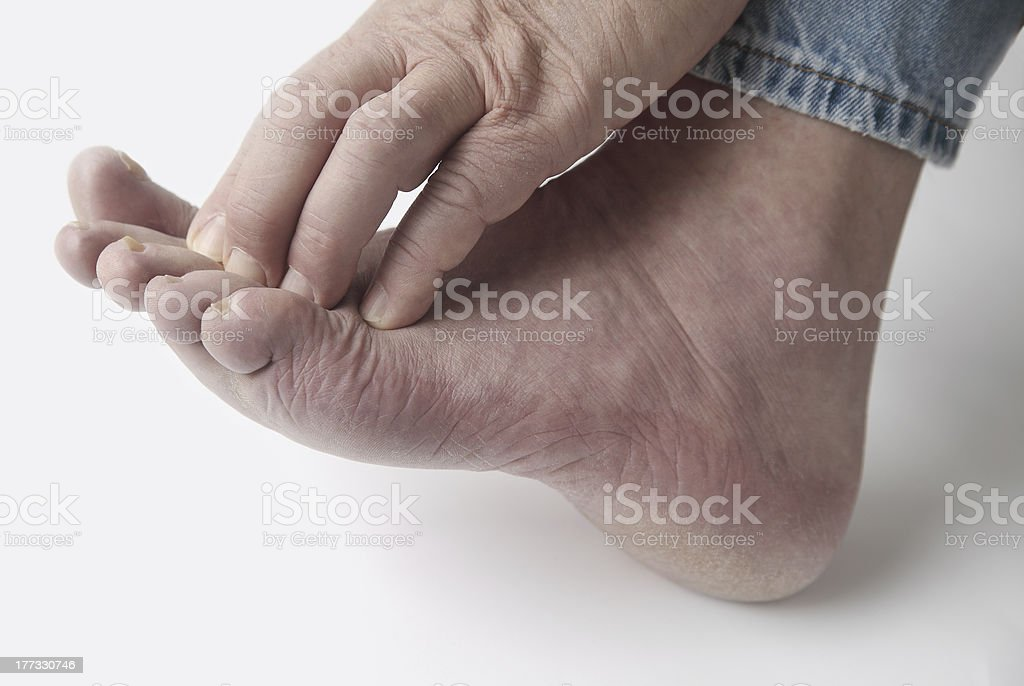 man with itchy toes stock photo