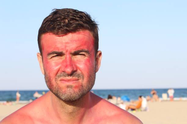 Homem com perdido de vermelhidão após bronzeamento - foto de acervo