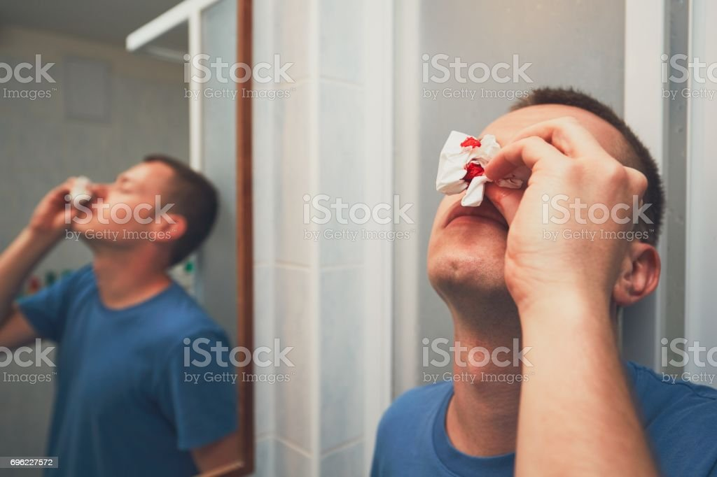 Man with nose bleed stock photo