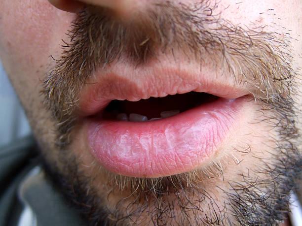 Mann mit offenen Mund – Foto