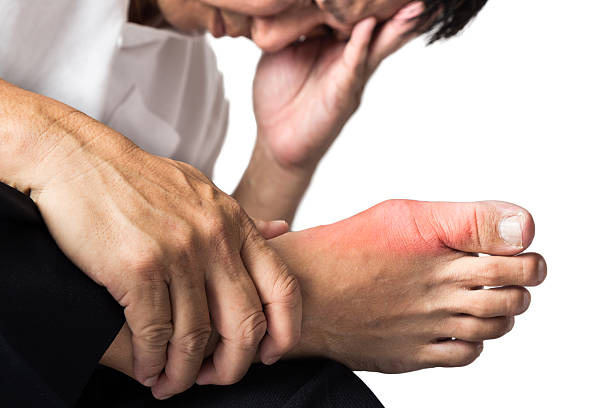 Man with painful and inflamed gout A man suffering from painful and inflamed gout on his right foot around the big toe area. gout stock pictures, royalty-free photos & images