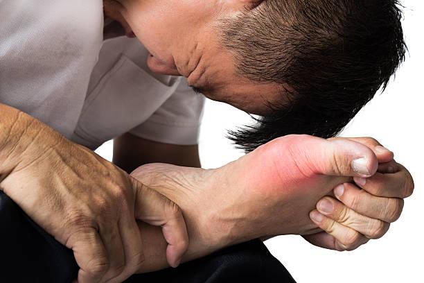 hombre con dolor e inflamación del gota - enfermedades de los pies fotografías e imágenes de stock