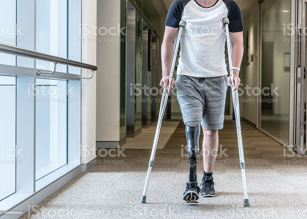 Man with prosthetic leg using crutches to walk down corridor stock photo