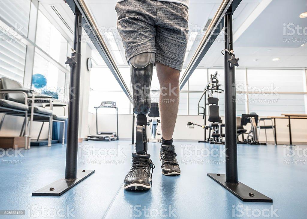 Hombre con una pierna ortopédica con barras paralelas - foto de stock