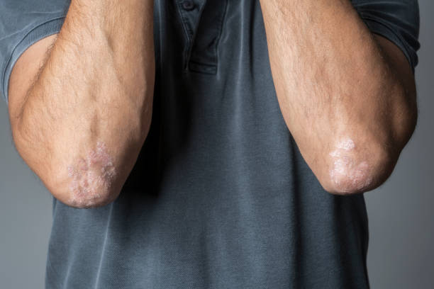 Man with psoriasis on his elbows stock photo