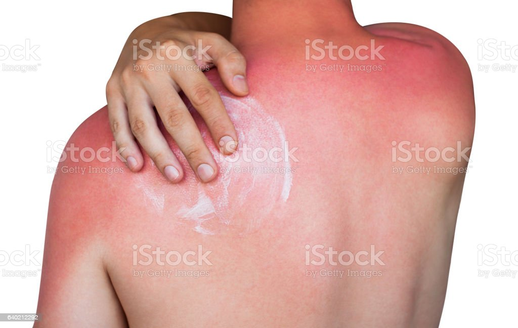 man with reddened itchy skin after sunburn – Foto