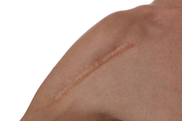 man with scar on his shoulder close up. laser scar reduction concept - shoulder surgery stock photos and pictures