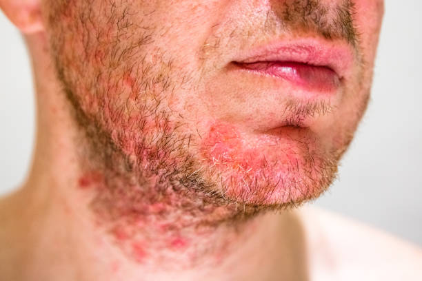 Man with seborrheic dermatitis in the beard area Detail of man's chin with seborrheic dermatitis in the beard area skin condition stock pictures, royalty-free photos & images