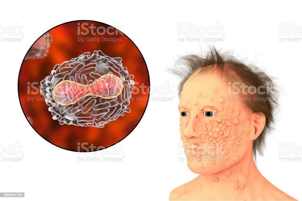 Photo libre de droit de Un Homme Avec La Variole Infection Et Virus ...