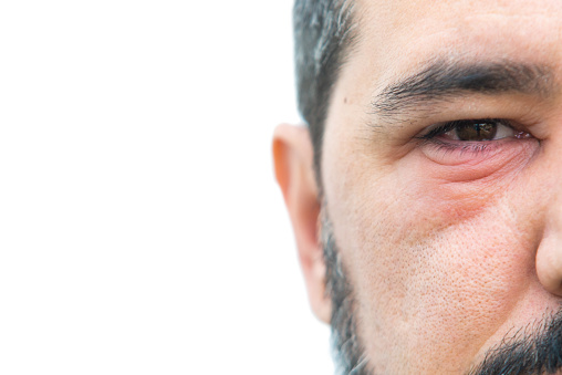 Man with stye in the eye with copy space for text