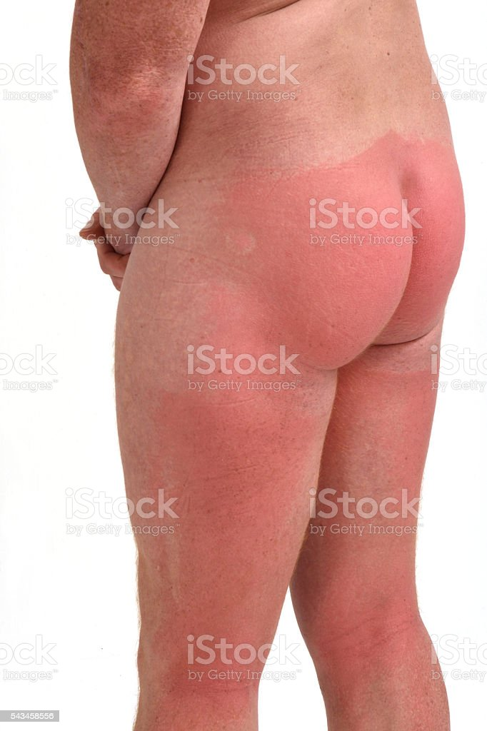 Man with sunburn stock photo