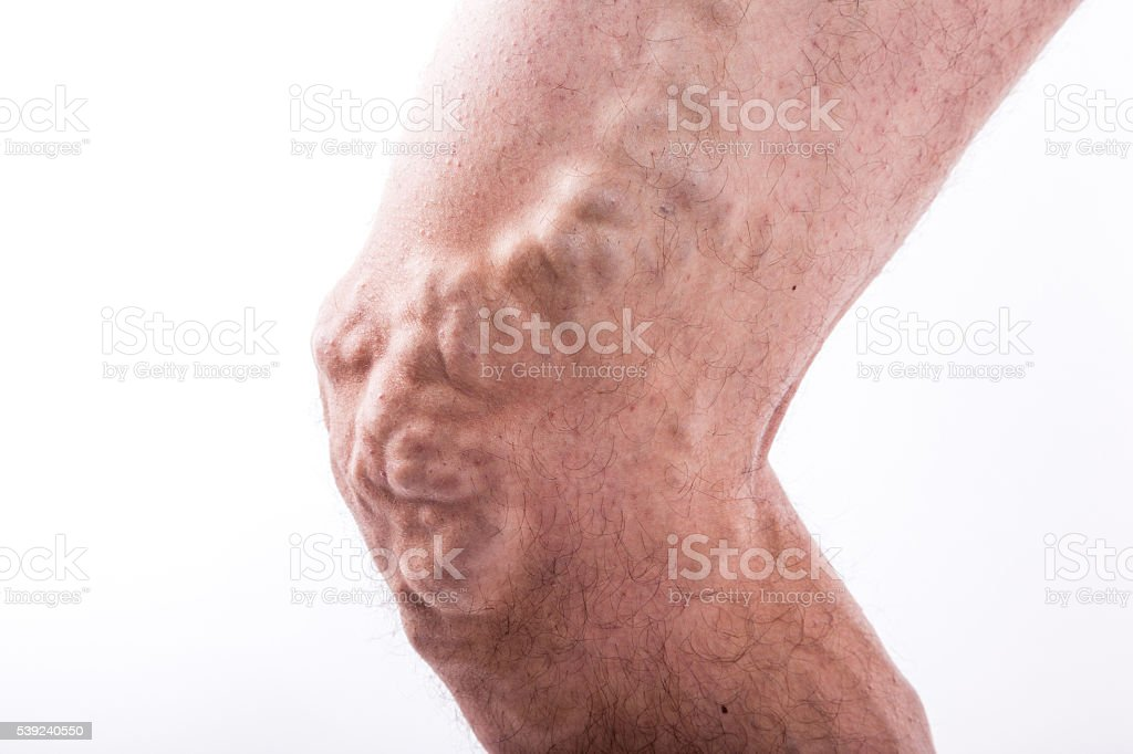 man with varicose veins of the lower extremities and venous stock photo