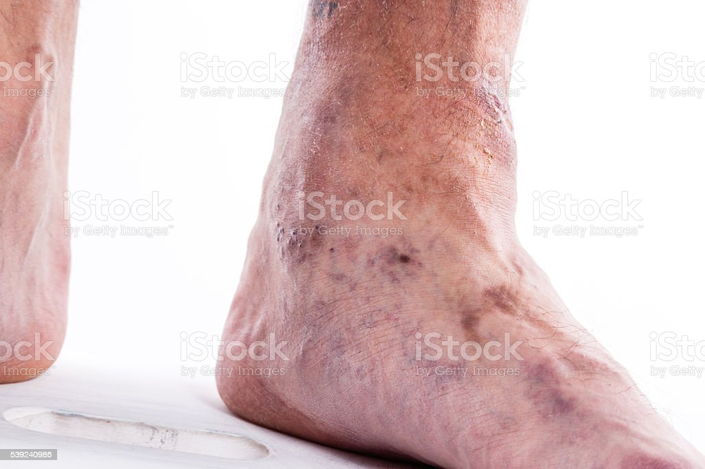 man with varicose veins of the lower extremities and venous royalty-free stock photo