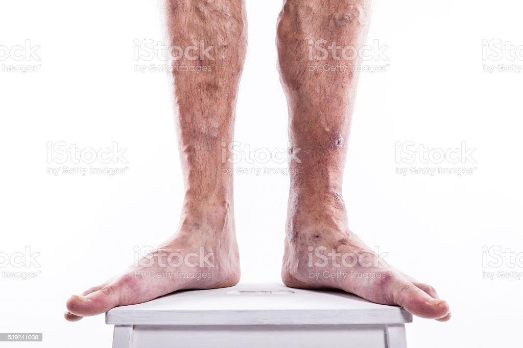 Hombre con venas varicosas de las extremidades inferiores y venosos foto de stock libre de derechos