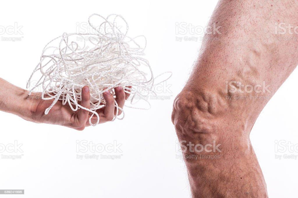 Hombre con venas varicosas foto de stock libre de derechos