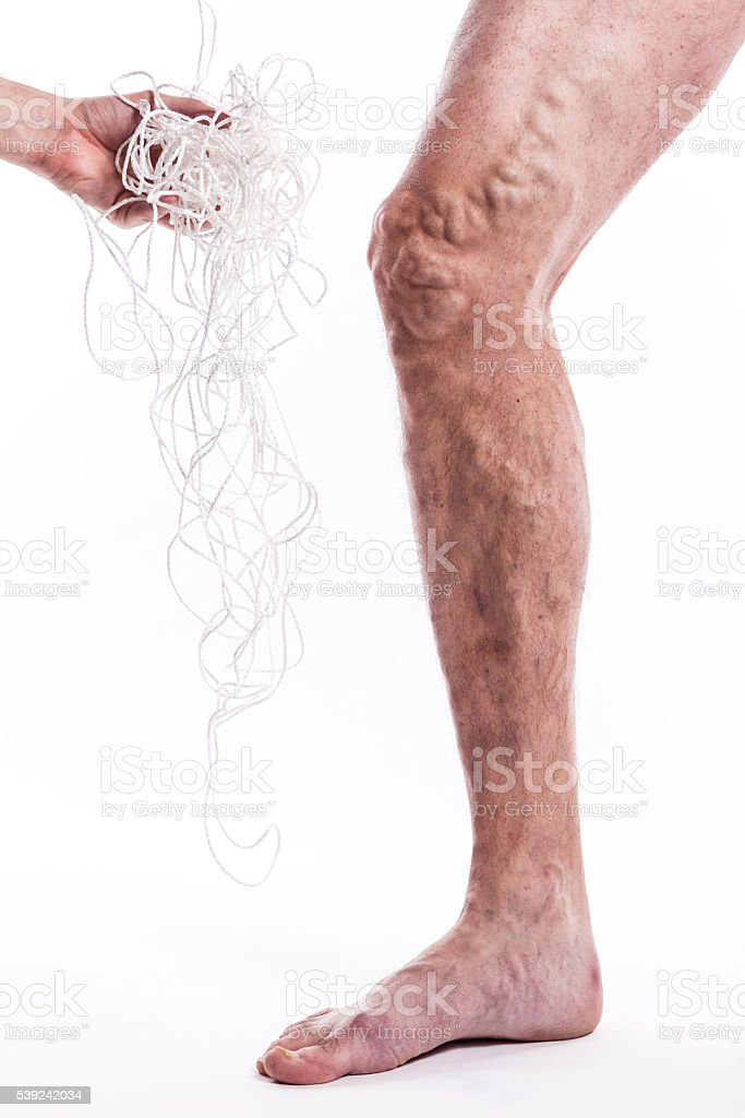man with varicose veins royalty-free stock photo