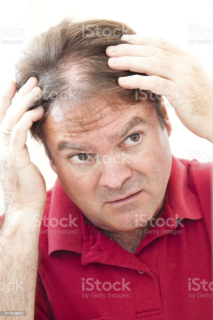 Man Worried About Balding stock photo