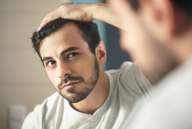 man worried for alopecia checking hair for loss - men stock pictures, royalty-free photos & images