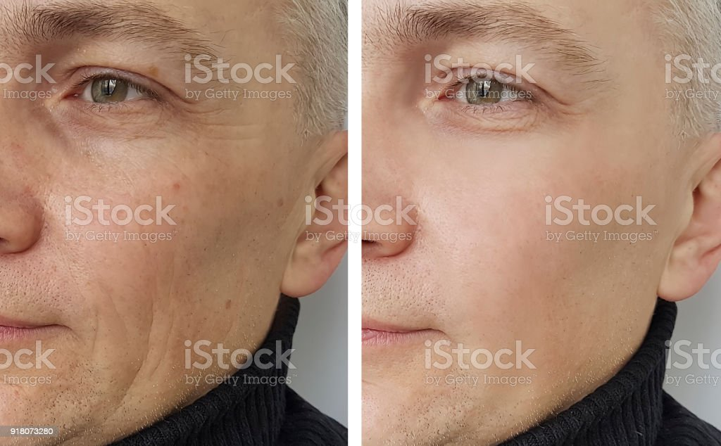 man wrinkles before and after - foto stock