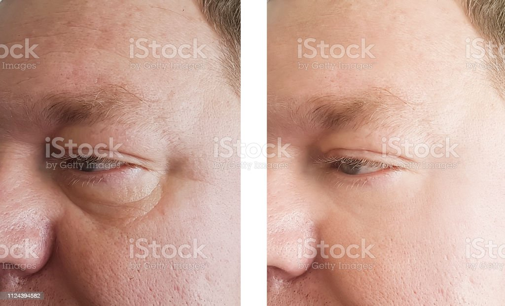 before picture of a man eyes puffiness and saggy under eye skin . After picture is firm, tight skin under eye after using Brickell Eye Balm for men