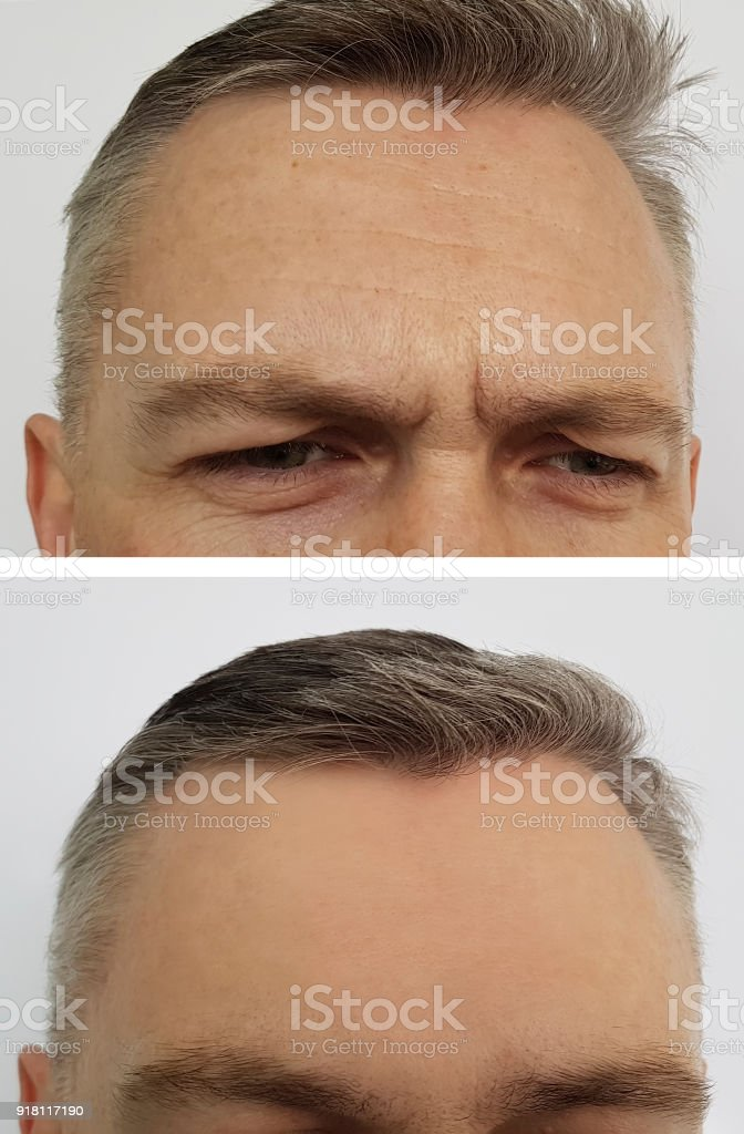 man wrinkles on the forehead before and after stock photo