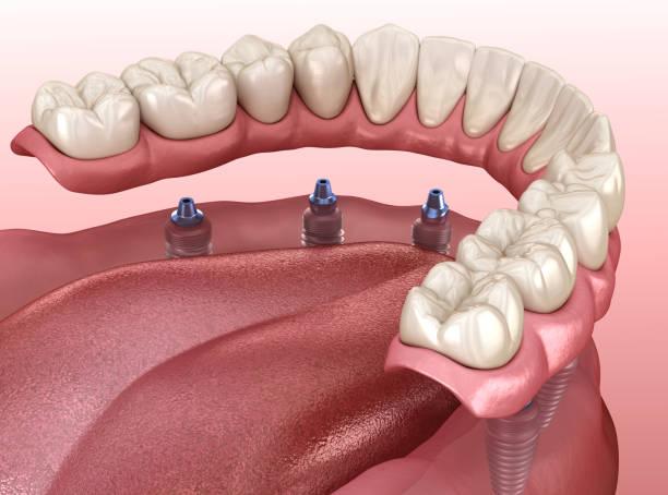 mandibulaire prothese met gom alle op 6 systeem ondersteund door implantaten.  medisch nauwkeurige 3d illustratie van de menselijke tanden en kunstgebit concept - kunstgebit stockfoto's en -beelden