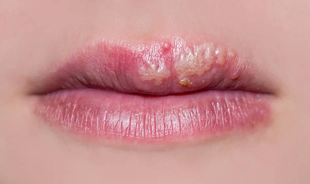 manifestation of herpes The photo shows manifestations of herpes on the lips of a girl herpes stock pictures, royalty-free photos & images