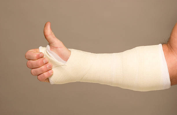 Mans arm in cast stock photo