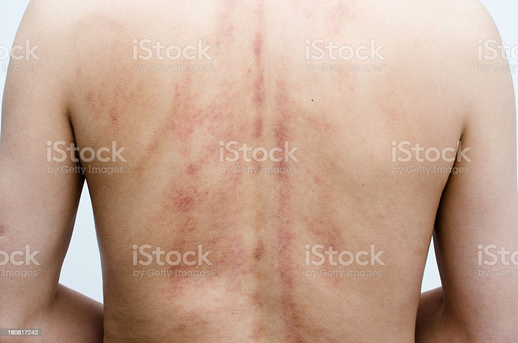 man's back after treatment of scrapping stock photo