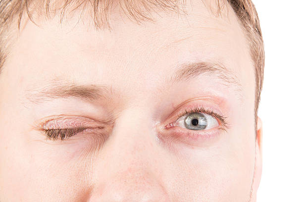 Man's blinking eyes stock photo