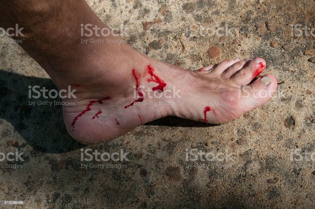 Man's bloody foot stock photo