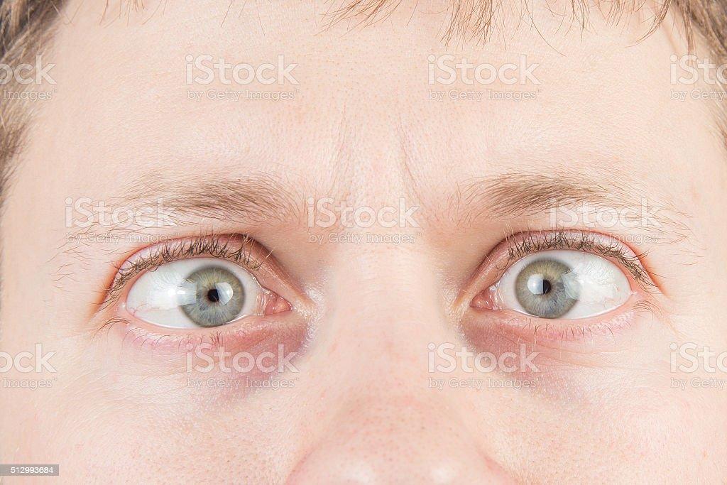 Man's crazy eyes stock photo