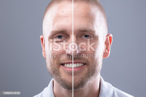 istock Man's Face Before And After Cosmetic Procedure 1069504530
