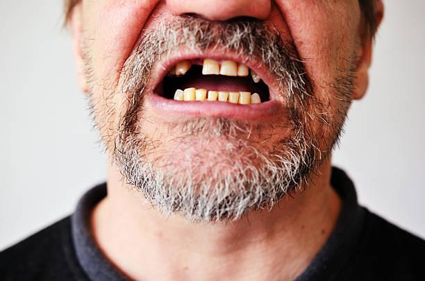 mann-gesicht mit offenem mund zahnlos - zahnlücke stock-fotos und bilder