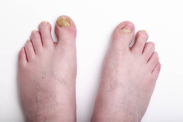 man's feet showing missing toenail after chemotherapy stock photo