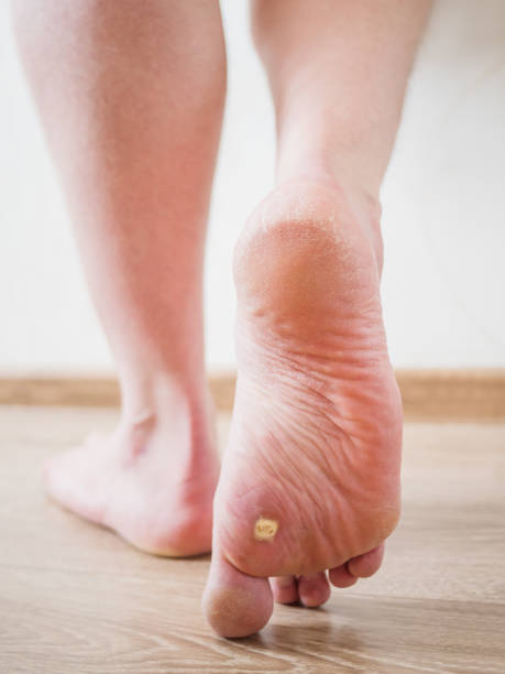 Man's  feet with corn on the heel,  trace of square salicylic plaster. stock photo