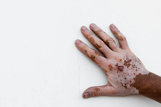 Man's hand affected by vitiligo isolated on white background stock photo