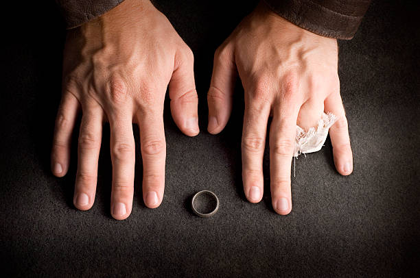 A man's hands with a ring finger cut off, signifying divorce stock photo
