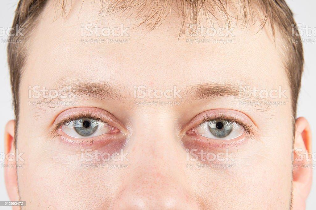 Man's tired eyes stock photo