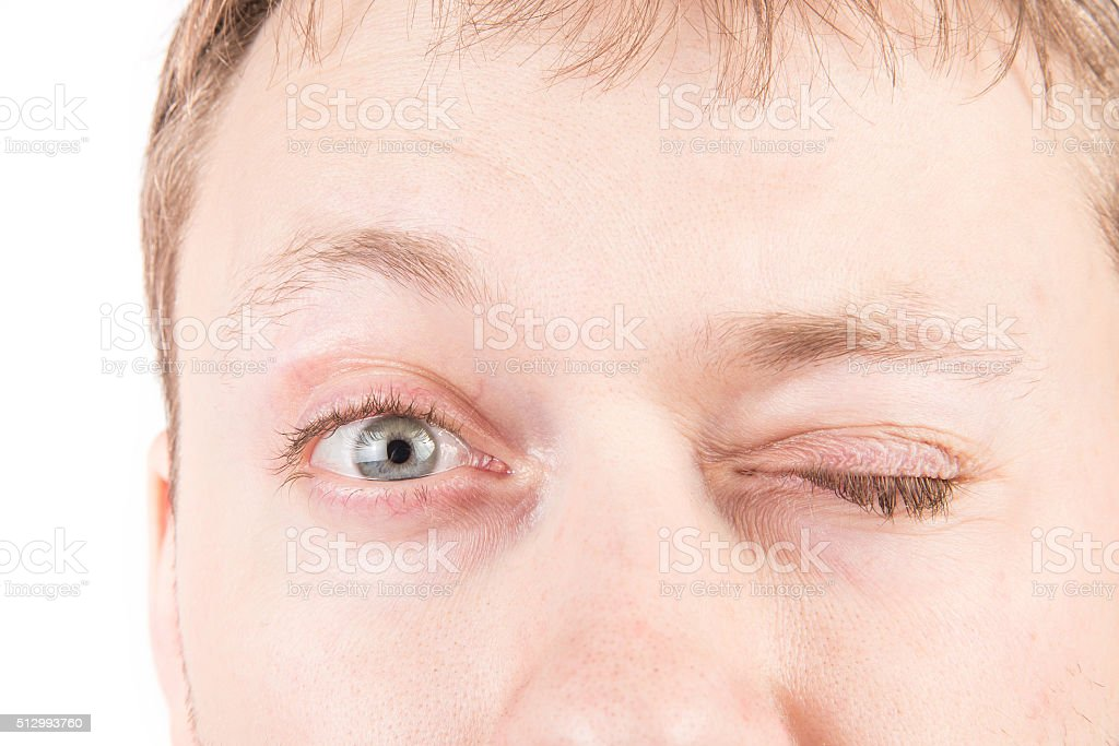 Man's tired eyes stock photo