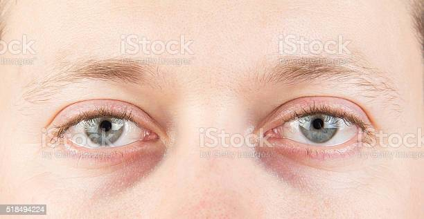 Mans Tired Eyes Stock Photo - Download Image Now