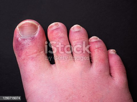 Image of a man's foot captured during the coronavirus pandemic. It has been documented that a foot rash is a common side effect of having the virus. The media refers to this as 'Covid Toe'.