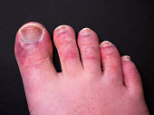 """istock A man's toes showing what looks like a rash with red blotchy skin. A common side effect of Covid-19 often referred to as """"Covid toe"""" 1250715074"""