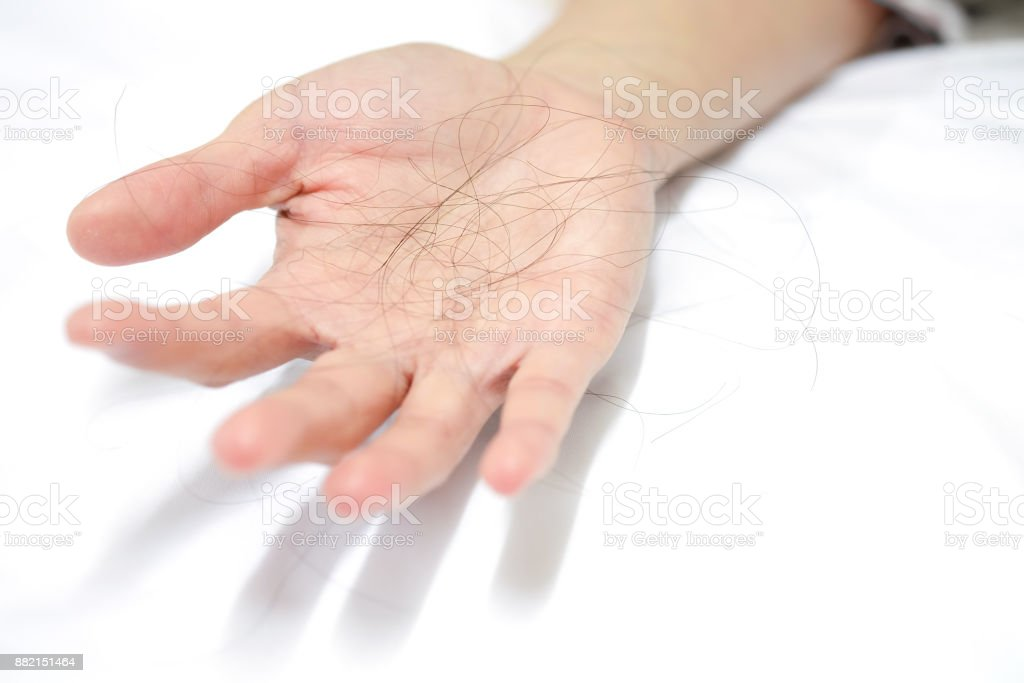Many hair loss in the hands of women on white background stock photo