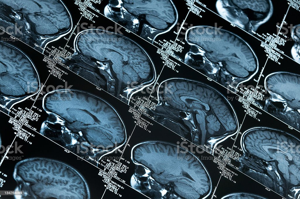 Many images of a MRI brain scan stock photo