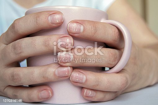 istock Many white spots on fingernails (Leukonychia) due to calcium deficit or stress. Female hands holding mug 1270316146