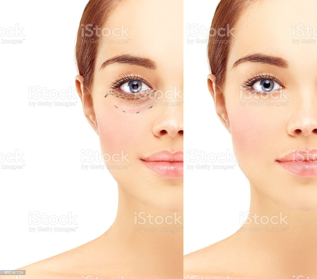Marking the face.Lower-Eyelid Blepharoplasty stock photo