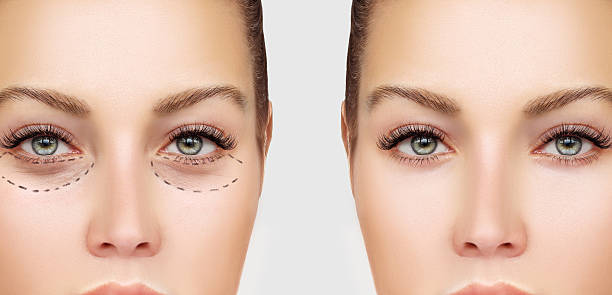 marking the face.lower-eyelid blepharoplasty - eyelid stock photos and pictures