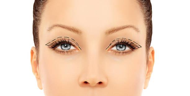 marking the face.upper-eyelid blepharoplasty - eyelid stock pictures, royalty-free photos & images