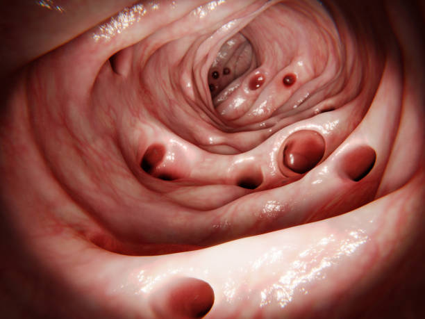 Massive diverticulosis in human intestinte. Diverticulitis results of the inflammation of one of the diverticula. stock photo